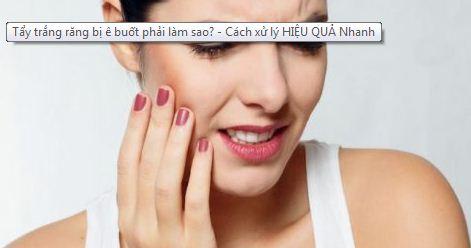 tẩy trắng răng bị ê buốt | cách giảm ê buốt răng sau khi tẩy trắng