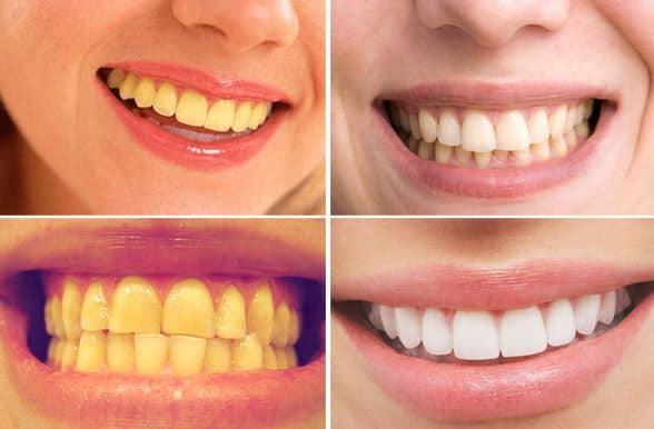 Cách làm trắng răng bị vàng tại nhà