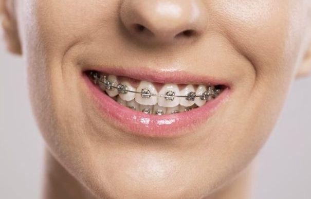 Kết quả sau khi niềng răng   Niềng răng xong có đẹp hơn không  Yteeth