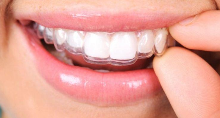 vì sao nên niềng răng hay chỉnh nha sớm