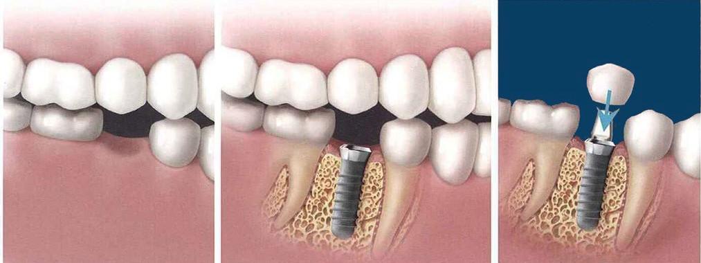 Quy trình cấy ghép implant tại Yteeth