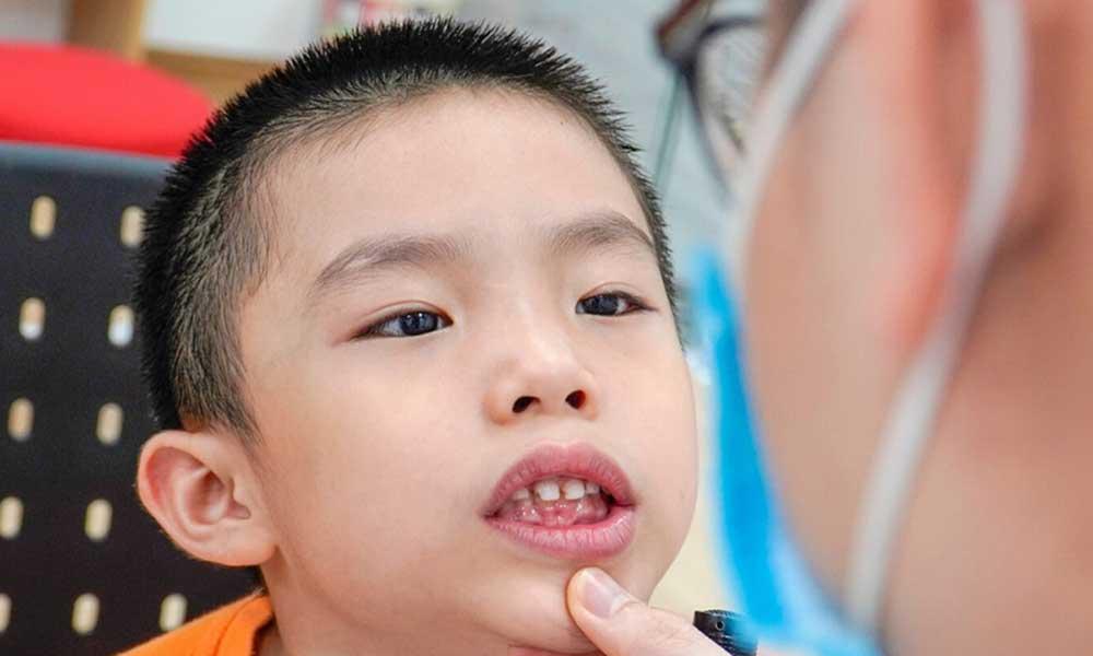 chăm sóc răng miệng tại Yteeth