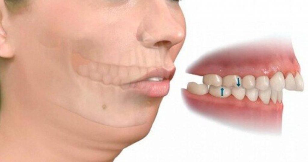 Các trường hợp cần chỉnh nha niềng răng