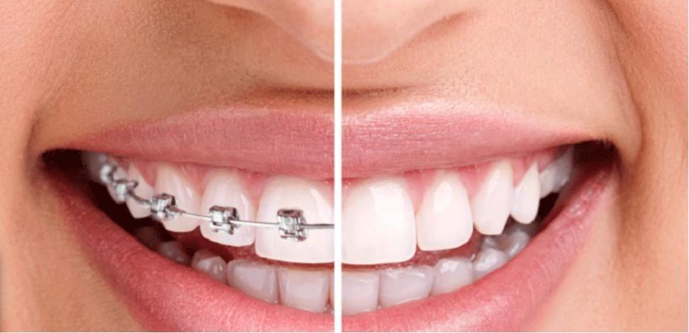 Độ tuổi phù hợp chỉnh nha niềng răng