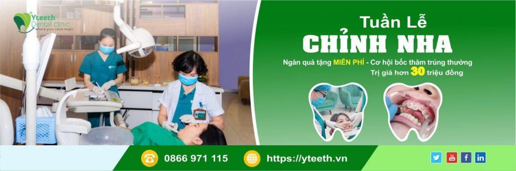 banner nha khoa yteeth