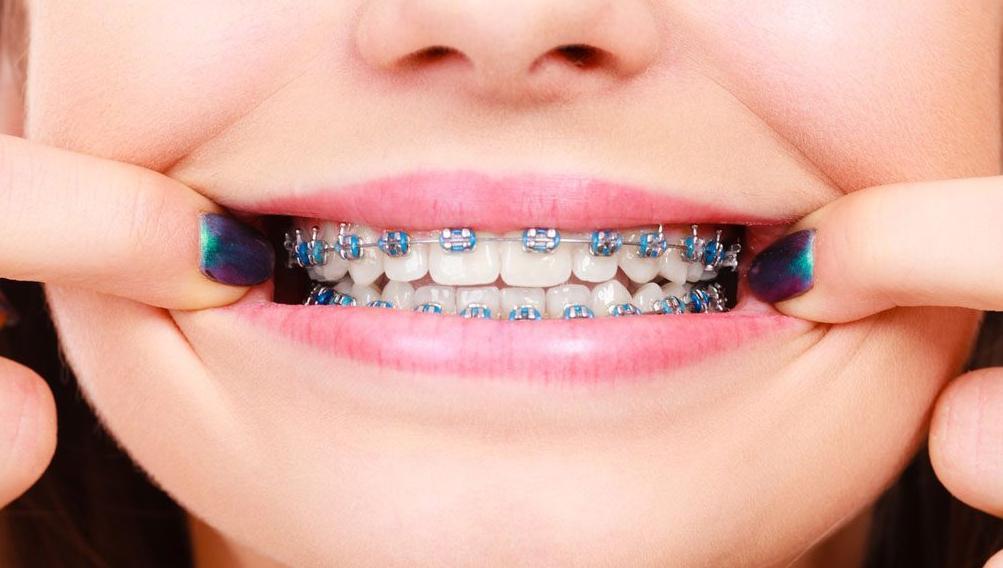 Niềng răng thẩm mỹ hiện nay