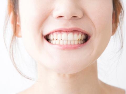Qui trình điều trị cười hở lợi tại Yteeth