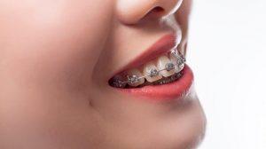 Tại sao niềng răng hô sớm nhất có thể