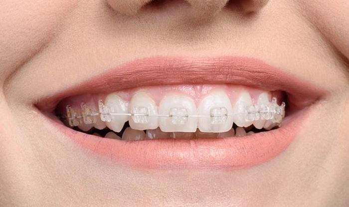 Kết quả sau khi niềng răng