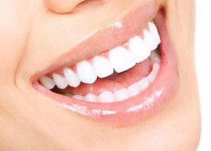 bọc răng sứ bao nhiêu tiền một chiếc | Nha khoa Yteeth