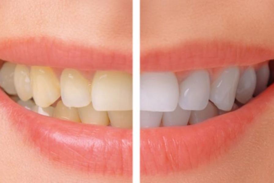 Nguyên nhân tẩy trắng răng bị ê buốt