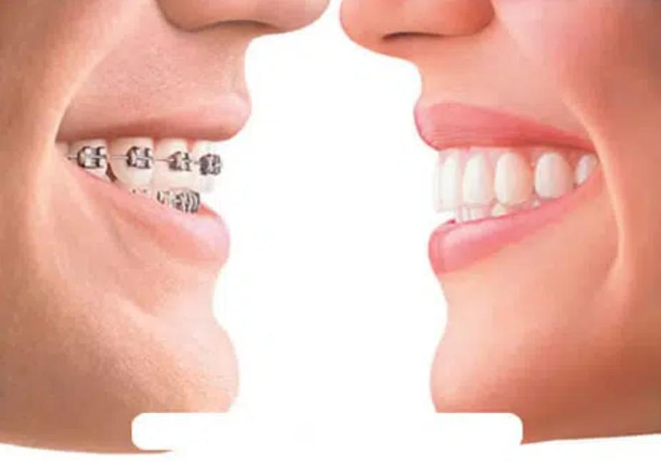 Ưu điểm của niềng răng thẩm mỹ
