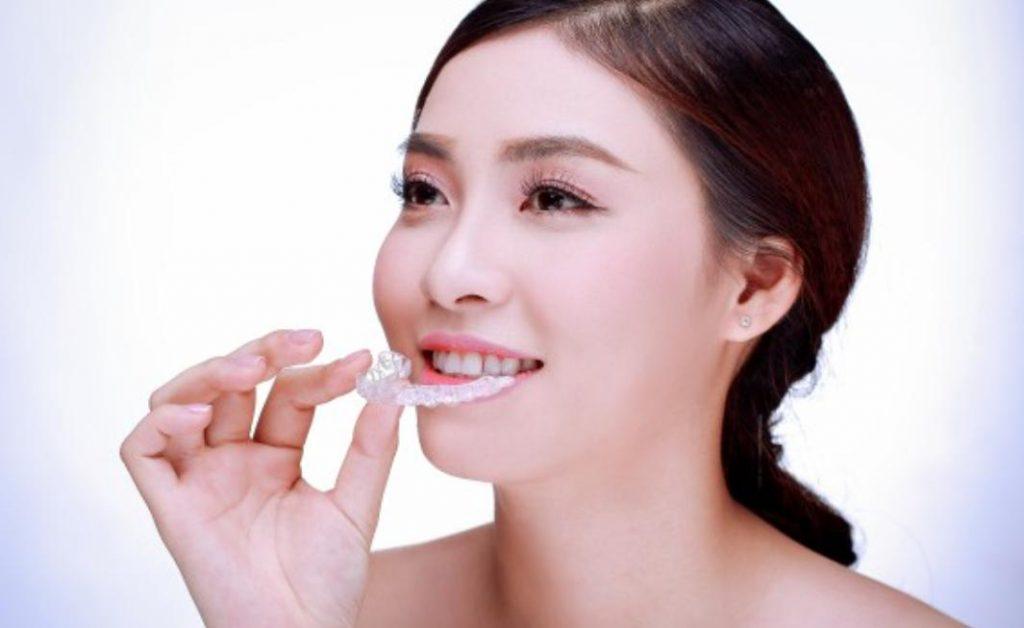 Quy trình niềng răng không mắc cài invisalign