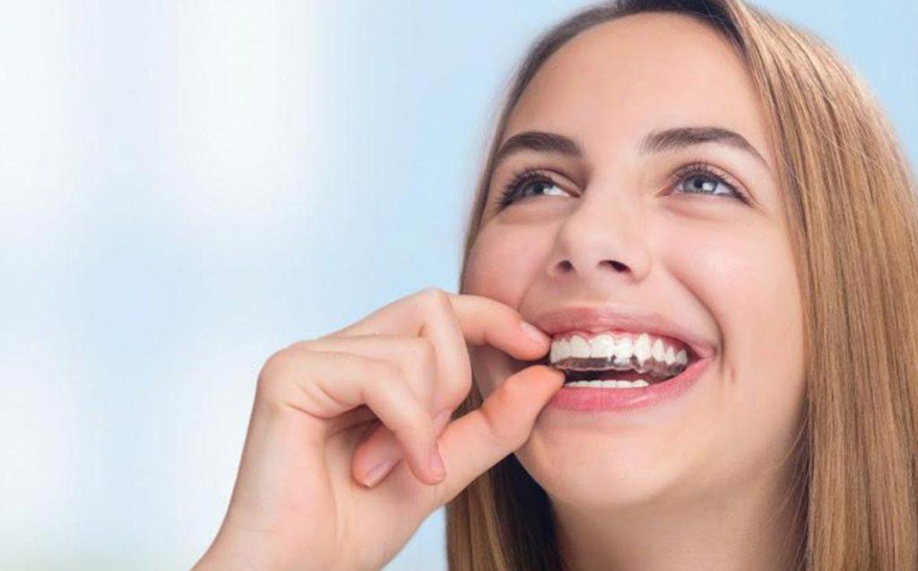 Niềng Răng Invisalign   Bật mí 7 Thông Tin Quan Trọng Khi cần niềng