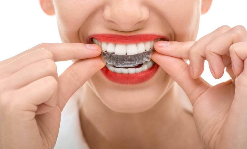 Nguyên lý hoạt động của niềng răng Invisalign