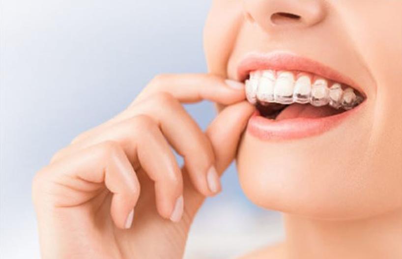 Ưu,nhược điểm của niềng răng invisalign