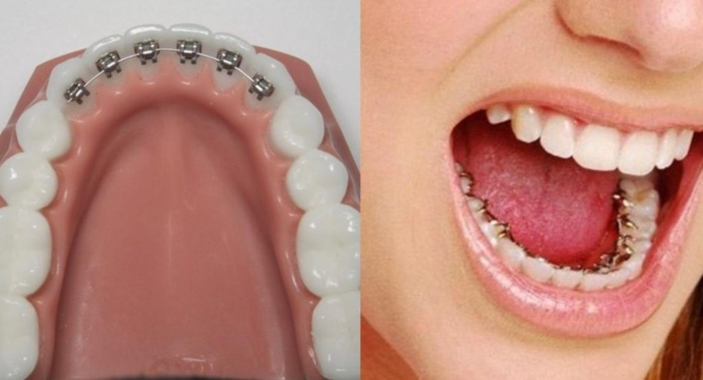 Niềng Răng Mặt Trong Có Tốt Không | Hiệu quả của niềng răng trong