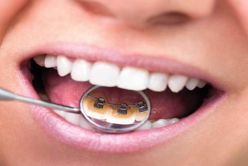 Ưu điểm của niềng răng mặt trong