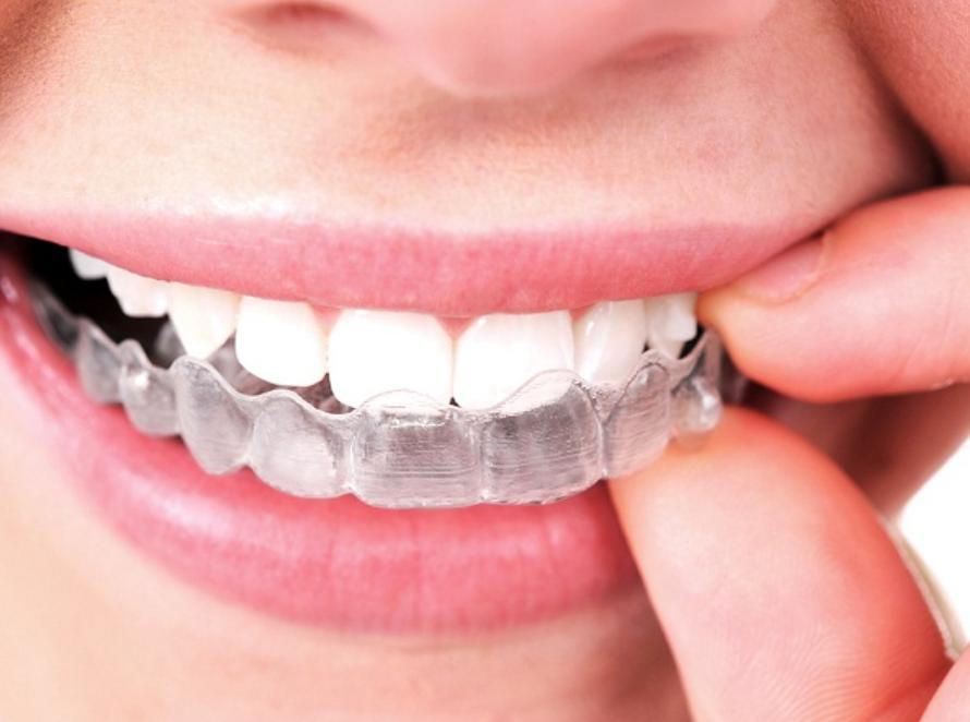 Niềng răng tháo lắp là gì?