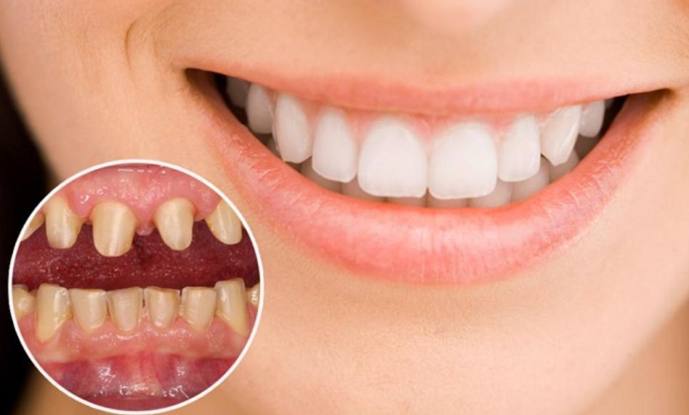 Tình trạng răng thật của răng bọc sứ bị lung lay