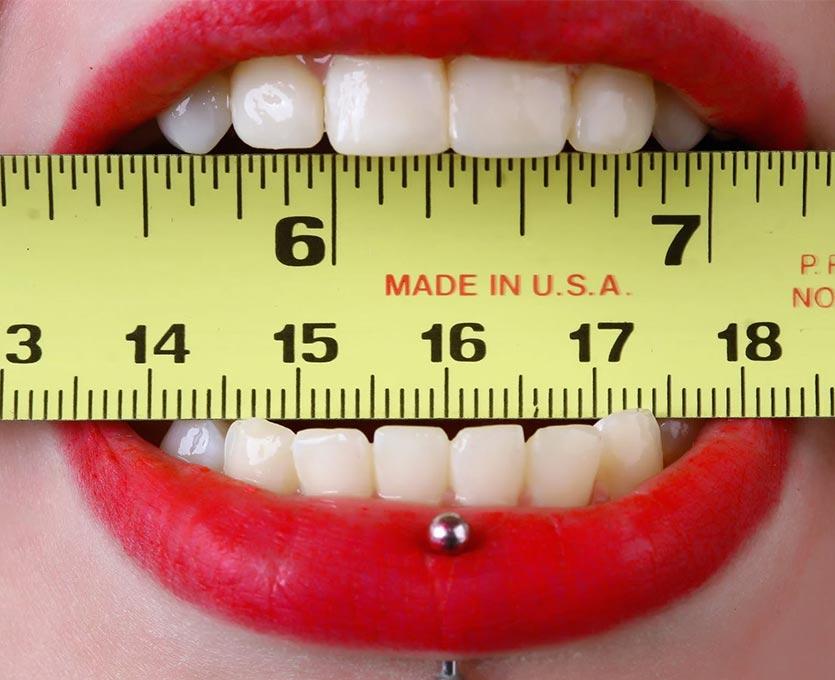 răng sứ mỹ | Yteeth