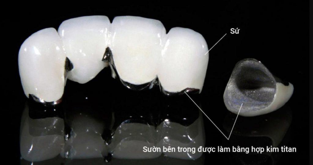 Ưu điểm của răng sứ Titan