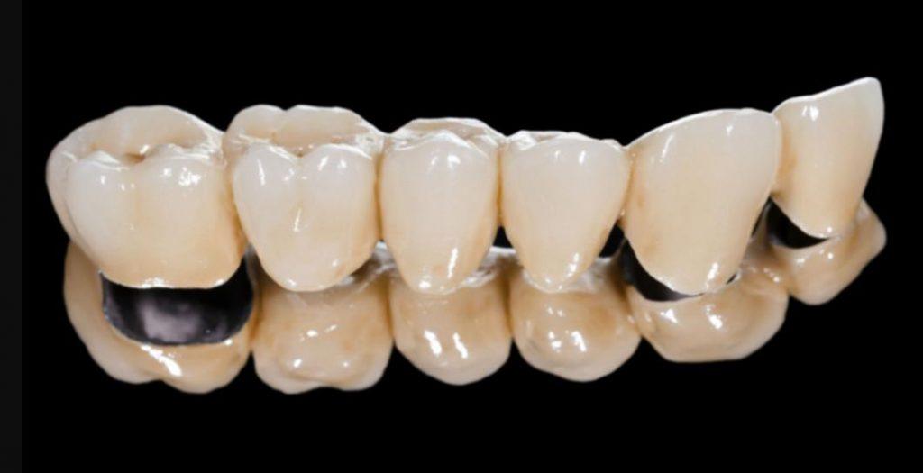 Răng sứ Titan là gì