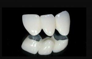 răng sứ titan | Yteeth