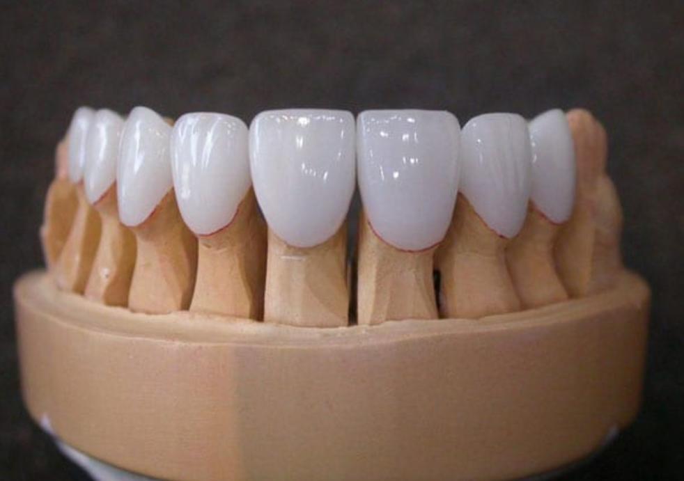Thành phần răng sứ Titan