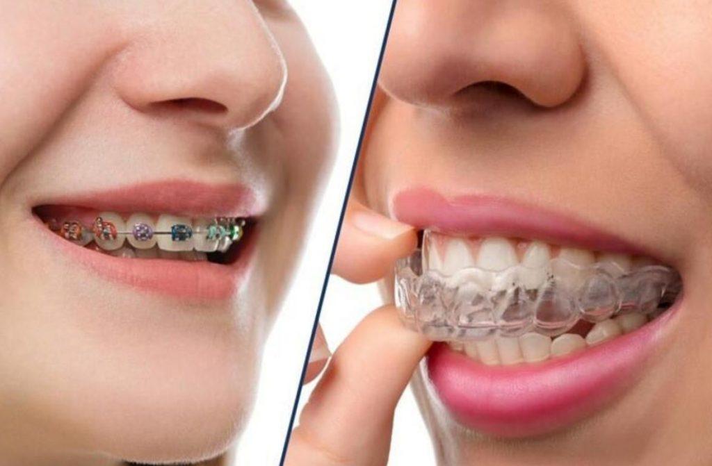 Cách niềng răng hô