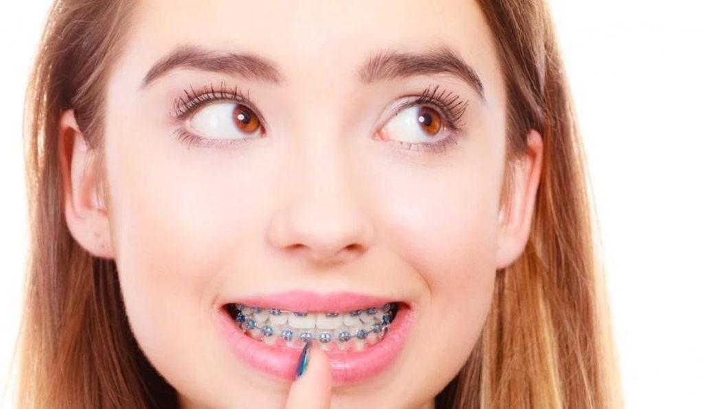 Những điều cần biết khi niềng răng | Tuân thủ các quy tắc