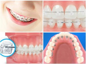 tìm hiểu về niềng răng mắc cài