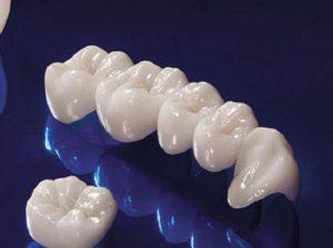 tìm hiểu về răng sứ kim loại