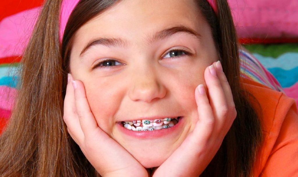 Niềng răng hay Chỉnh nha do sai khớp cắn